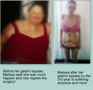 gastric bypass-1